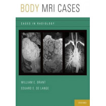 Body MRI Cases by Eduard E. de Lange, 9780199740710