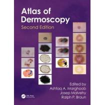 An Atlas of Dermoscopy by Ashfaq A. Marghoob, 9780415458955