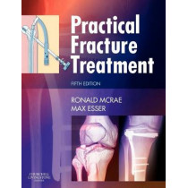 Practical Fracture Treatment by Ronald McRae, 9780443068768