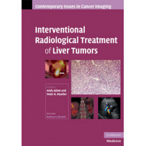 Interventional Radiological Treatment of Liver Tumors by Andy Adam, 9780521886871