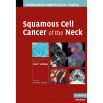 Squamous Cell Cancer of the Neck by Robert Hermans, 9780521886918