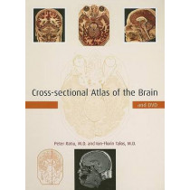 Cross-sectional Atlas of the Brain and DVD by Peter Ratiu, 9780674019232