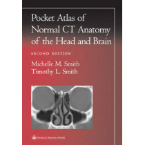 Pocket Atlas of Normal CT Anatomy of the Head and Brain by Michelle M. Smith, 9780781729499