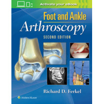 Foot & Ankle Arthroscopy by Richard D. Ferkel, 9780781783415