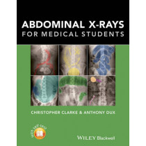 Abdominal X-rays for Medical Students by Christopher Clarke, 9781118600559