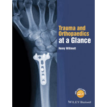 Trauma and Orthopaedics at a Glance by Henry Willmott, 9781118802533