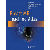 Breast MRI Teaching Atlas by Richard Ha, 9781493964079