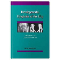Developmental Dysplasia of the Hip by J.Richard Bowen, 9781574001082