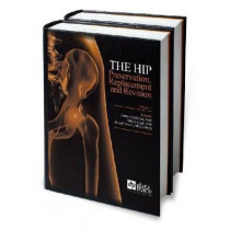 The Hip: Preservation, Replacement and Revision by James Cashman, 9781574001495