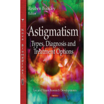 Astigmatism: Types, Diagnosis & Treatment Options by Reuben Buckley, 9781633219786