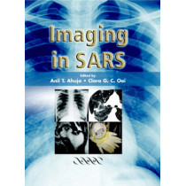 Imaging in SARS by A. T. Ahuja, 9781841102191