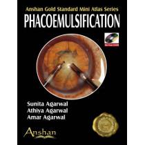 Mini Atlas of Phacoemulsification by Sunita Agarwal, 9781905740437