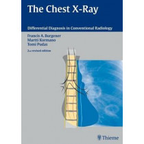 The Chest X-Ray by Francis A. Burgener, 9783131076120