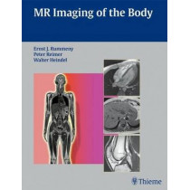 MR Imaging of the Body by Peter Reimer, 9783131358417