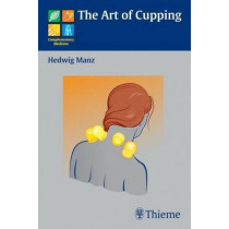 The Art of Cupping by Hedwig Manz, 9783131486011