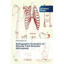 Radiographic Evaluation of Reverse Total Shoulder Arthroplasty by Kaplan-List Katia, 9783639765953