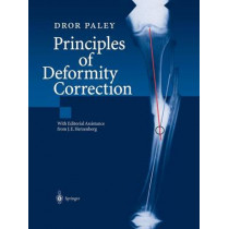 Principles of Deformity Correction by J. E. Herzenberg, 9783642639531