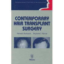 Contemporary Hair Transplant Surgery by Kenneth A. Buchwach, 9780865775770