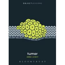 Tumor by Anna Leahy, 9781501323300