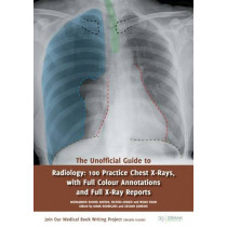 The Unofficial Guide to Radiology: 100 Practice Chest X-Rays by Nihad Khan, 9781910399019