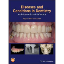 Diseases and Conditions in Dentistry: An Evidence-Based Reference by Keyvan Moharamzadeh, 9781119312031