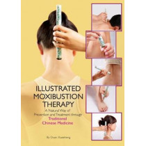 The Illustrated Moxibustion Therapy: A Natural Way of Prevention and Treatment through Traditional Chinese Medicine by Duan Xuexhong, 9781602200371