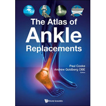 Atlas Of Ankle Replacements, The by Andrew Goldberg, 9781786346230
