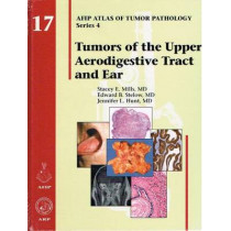 Tumors of the Upper Aerodigestive Tract and Ear by Stacey E. Mills, 9781933477206